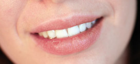 Beauty Quick-Tipps #5 – Spröde Lippen