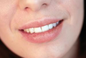 Beauty Quick Tipp 5 spröde Lippen
